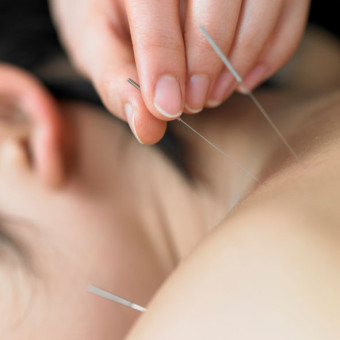 Using Acupuncture to Treat Pain